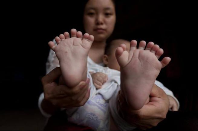 31 parmaklı bebek 5