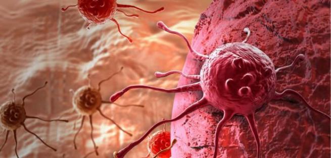 Erkeklerde neler kanser belirtisi 36