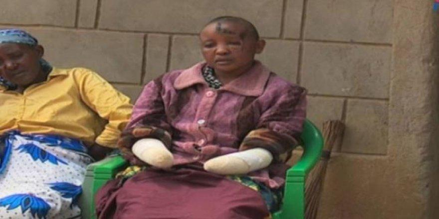 Hamile kalamayan karısının ellerini kesti