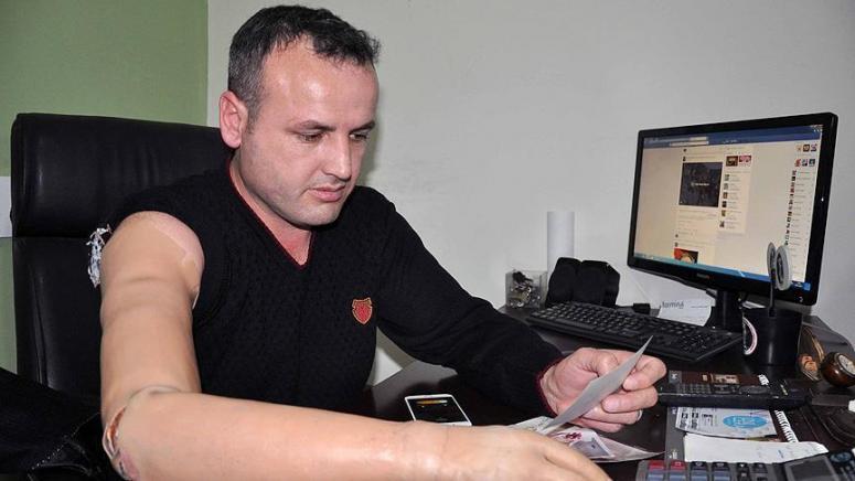 Gazi Akyol 'Vatan için sol kolumuda veririm'