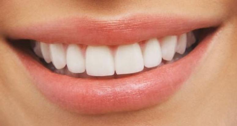 Beyazlatma işlemi diş sağlığı için zararlı mı?