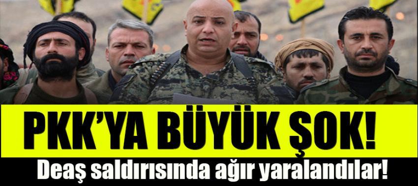 PKK'ya büyük şok! DAEŞ saldırısında ağır yaralandı