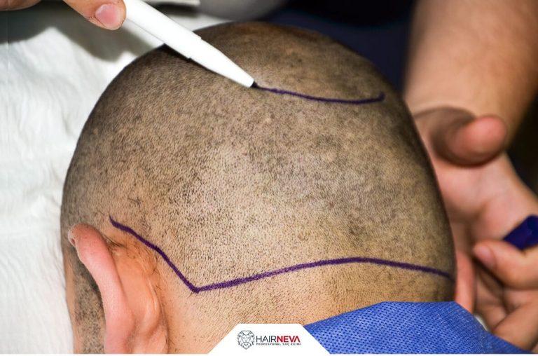 İğnesiz saç ekiminde lazer kullanımı
