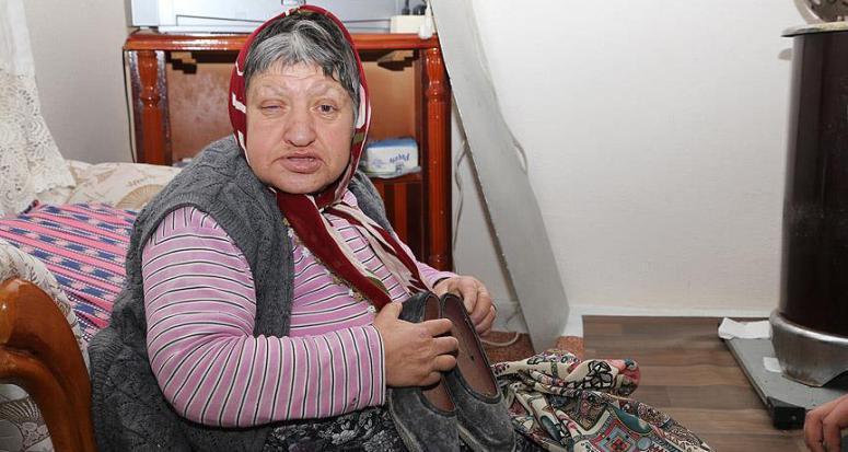 Engelli teyze Türkmenlere 'kara lastiklerini' verdi