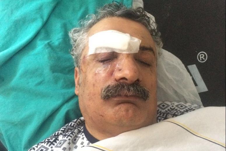 Çiyager'i dövenler gözaltına alındı