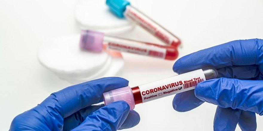 İşte son 24 saatteki koronavirüs verileri