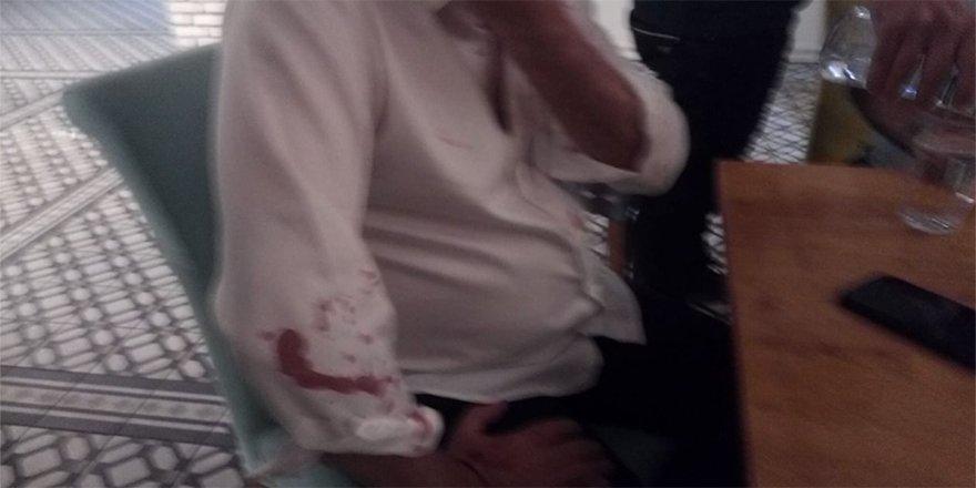 'Tecavüz Kumpası' finansörünün tetikçileri Didim Belediye Başkanı Atabay'a bu kez de beyzbol sopasıyla saldırdı