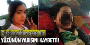 Dişçiye giden genç kız yüzünün yarısını kaybetti!