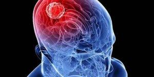 Ailesinde beyin tümörü olanlar dikkat