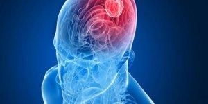 Beyin ölümünün geri dönüşü var mı?