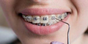 Tek Kullanımlık Dişlerinizin Kontrollerini Aksatmayın!